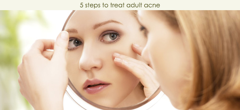 5 Steps To Treat Adult Acne
